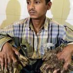 «Человек-дерево» из Бангладеш сумел обнять свою дочь ФОТО