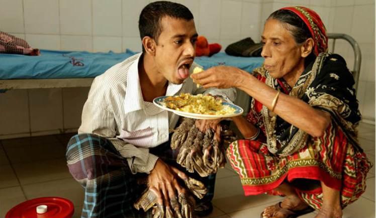 chelovek-derevo-iz-bangladesh-sumel-obnyat-svoyu-doch-foto